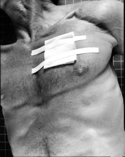 Albert J. Winn, Band-Aids series, 1999